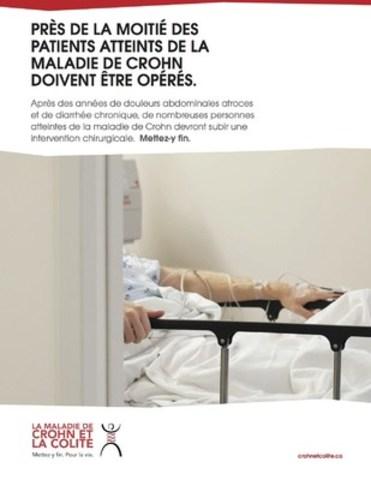 cnw pleins feux sur la maladie de crohn et la colite ulc reuse en ce mois de novembre. Black Bedroom Furniture Sets. Home Design Ideas